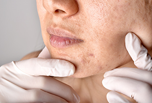 skin problems caused by hormonal imbalances